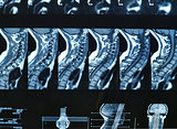 MRI C-spine