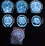 Mri Brain Scan