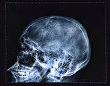 X-ray of human Head