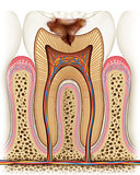 Carle of a tooth with advanced