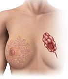 normal breast lobules