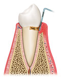 gingivitis tooth decay by