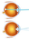 laser treatment on the eye