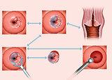 cervical tumor
