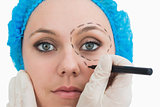 Plastic surgeon drawing around eye