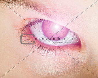 Human eye and light