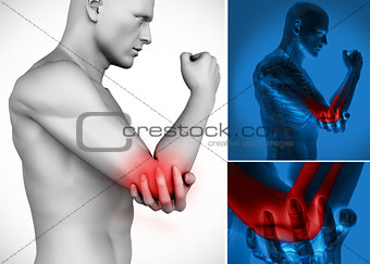 Three images of elbow pain