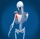 Shoulder pain on skeleton