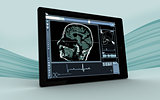 Digital tablet showing brain interface