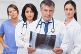 Doctor holding xray with his team