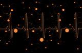 Orange ECG line