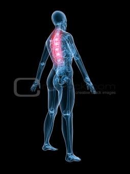 x-ray anatomy-backache