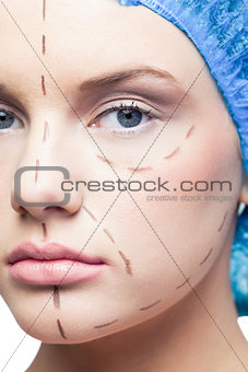 Close up on relaxed young patient with dotted lines on the face