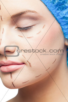 Close up on cute young patient with dotted lines on the face