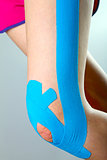 physiotherapy - knee with blue kinesio tape