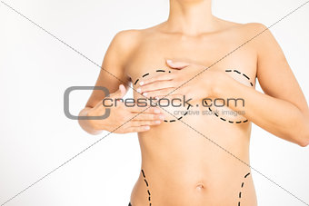 Naked torso of a woman marked for surgery