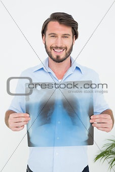 Portrait of a smiling young man holding lung x-ray