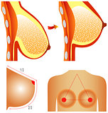 Plastic surgery of breast.