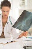 Closeup on medical doctor woman with fluorography working in off