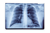 Lung radiography x-ray result