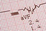 cardiographical test results