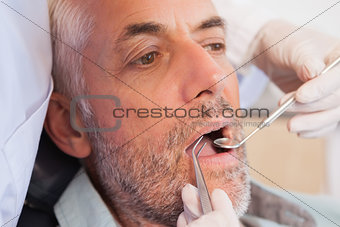 Dentist examining a patients teeth in the dentists chair