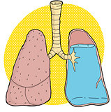 Pneumonia Illustration