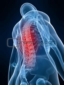 painful back