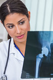 Latina Female Woman Hospital Doctor with X-Ray