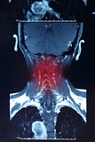 Painful neck X-ray