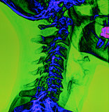 Back and spine x-ray