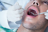Close up of man having his teeth examined