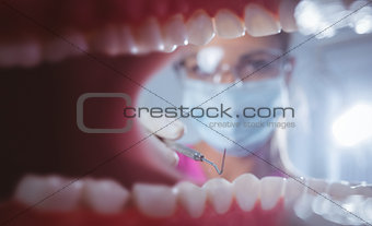 Close up of a mouth open with the dentist behind