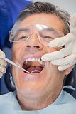 Patient mouth open and dentist examining