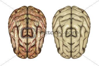 3D healthy and diseased brains