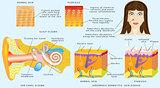 Eczema skin