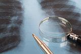 X-ray examination and pen