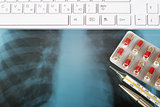 X-ray examination and keyboard