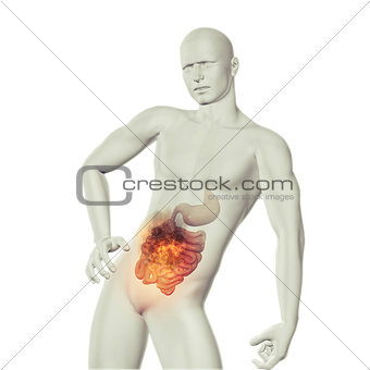 3D male medical figure with fire effect in stomach with exposed