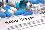 Hallux Valgus Diagnosis. Medical Concept.