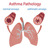 asthma pathology