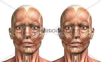 3D male medical figure showing mandible lateral deviation