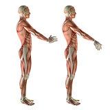 3D medical figure showing wrist radial deviation and ulnar devia