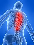 human skeletal back with pain