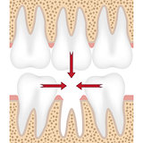 Illustration of missing tooth.