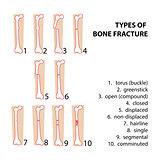 bones fractures