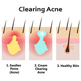 Illustration of clearing skin from acne.