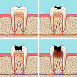 Dental caries stages.