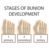 bunion development
