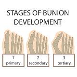 bunion development